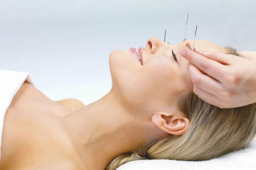 Akupunktura-glava1