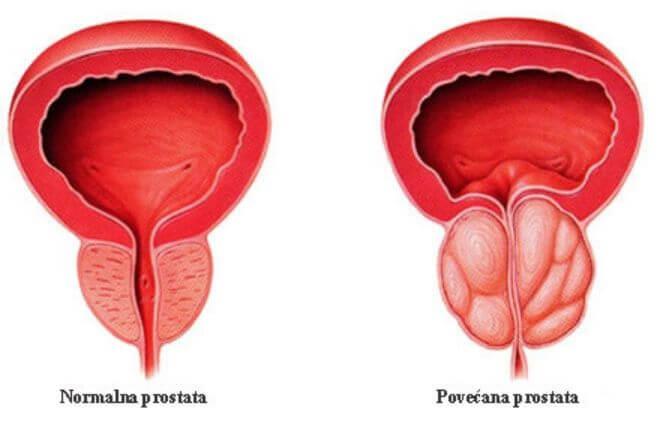 Povećana prostata