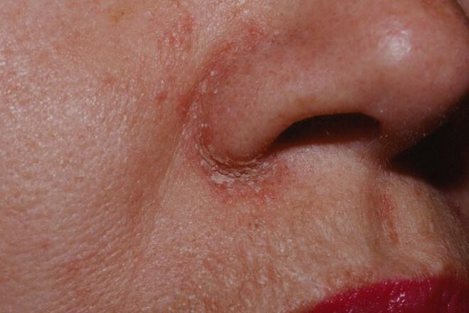 seboroicni dermatitis