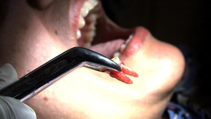 vadenje zuba
