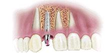 Zubni implantati- trajno rešenje za krezubost