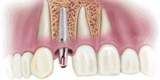 Zubni implantati- trajno rješenje za krezubost