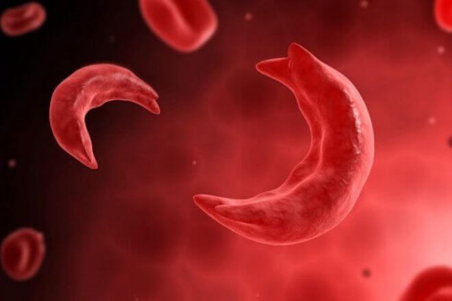 Anemija srpastih stanica