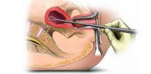 Dilatacija i kiretaža materice- postupak, alternativa i oporavak