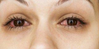 Crvene oči – uzroci i liječenje