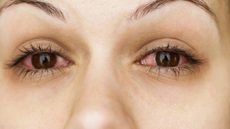 crvene oci
