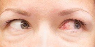 Crvene oči- uzroci i liječenje
