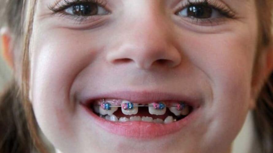 ispravljanje zubi