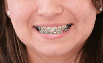 ispravljanje zubi odrasli