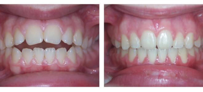 ispravljeni zubi