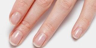 Krhki i lomljivi nokti? Riješite ih se pravilnom prehranom