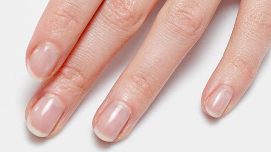 lomljivi nokti