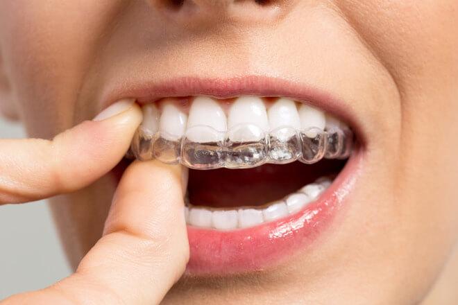 prozirni aparatic za zube
