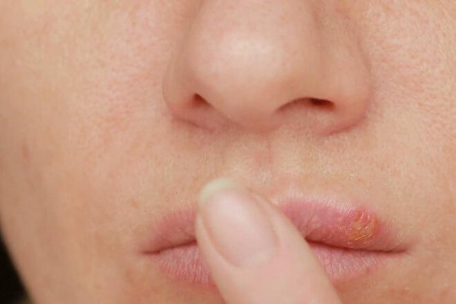 herpes liječenje