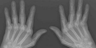 Reumatoidni artritis – simptomi, liječenje i prehrana