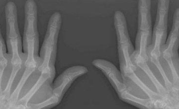 reumatoidni-artritis