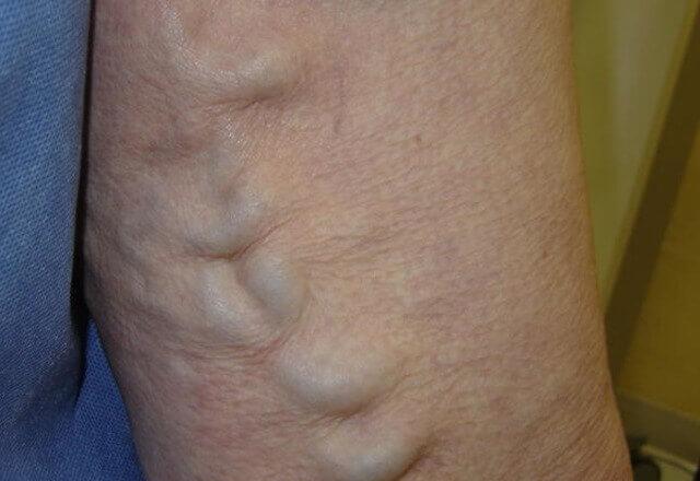 površinska venska tromboza
