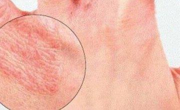 alergijski-dermatitis