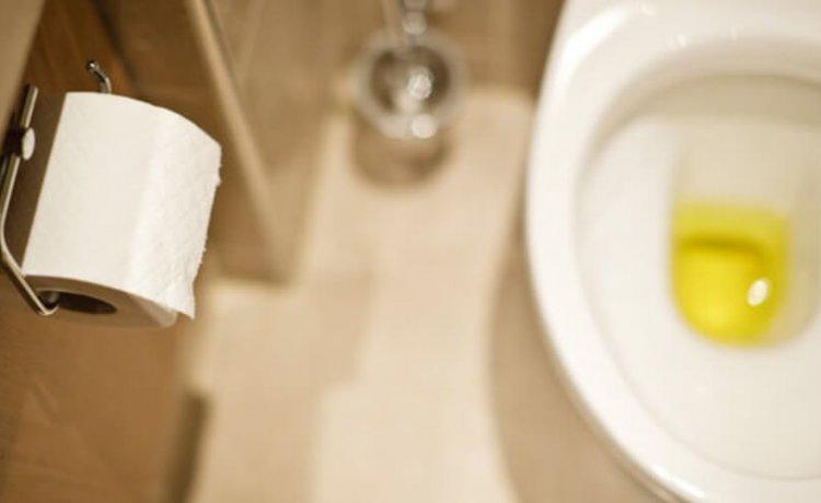 Boja i miris urina – pokazatelji zdravlja | Kreni zdravo!