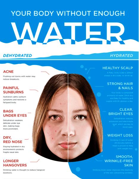 dehidracija