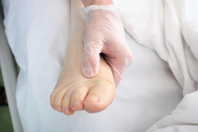 edem stopala