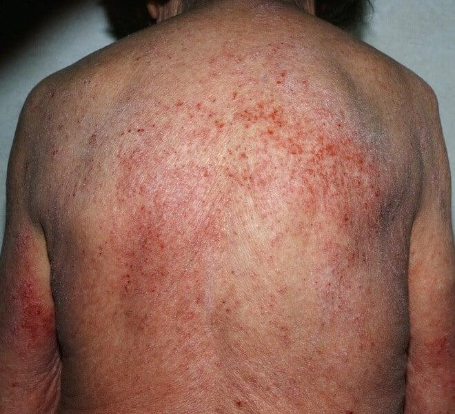 hiperozinofilija