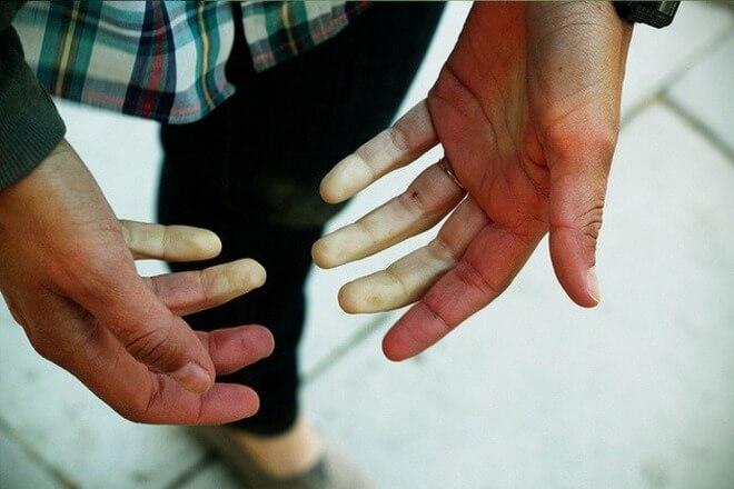 hladne ruke