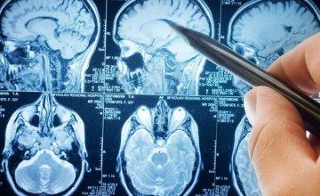 lezije na mozgu