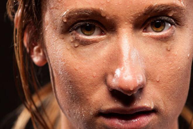 pretjerano znojenje