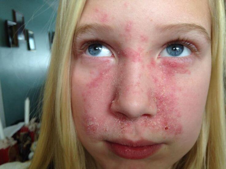 seboroicni dermatitis djeca