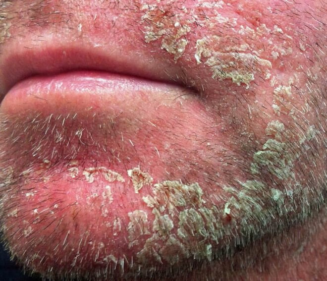 Seboroični dermatitis kod odraslih