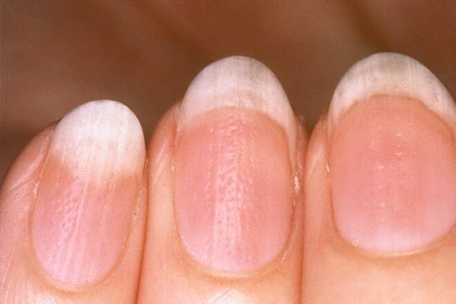udubljenja na noktima