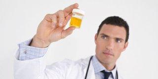 Boja i miris urina – pokazatelji zdravlja