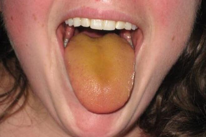zuti jezik jetra