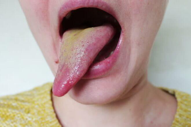 zuti jezik