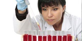 Nedostatak hemoglobina u krvi – što ga uzrokuje i kada posjetiti liječnika?