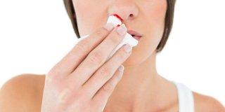 Obilna krvarenja iz nosa – što ih uzrokuje i kako ih spriječiti?