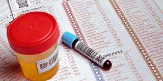 Povišen kreatinin – uzroci i dijagnoza