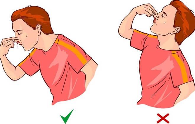 Pravilo kod curenja krvi iz nosa