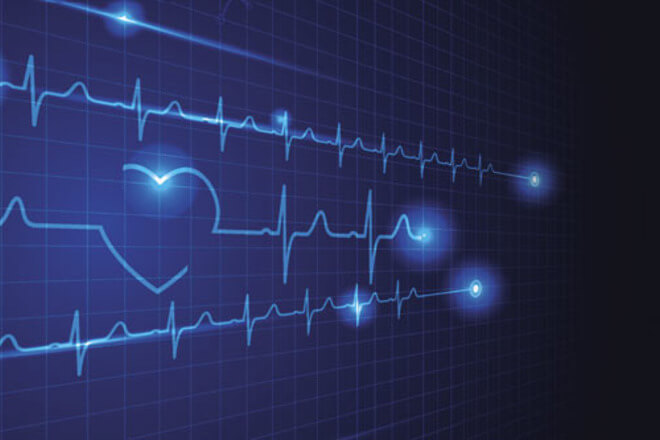 usporen rad srca