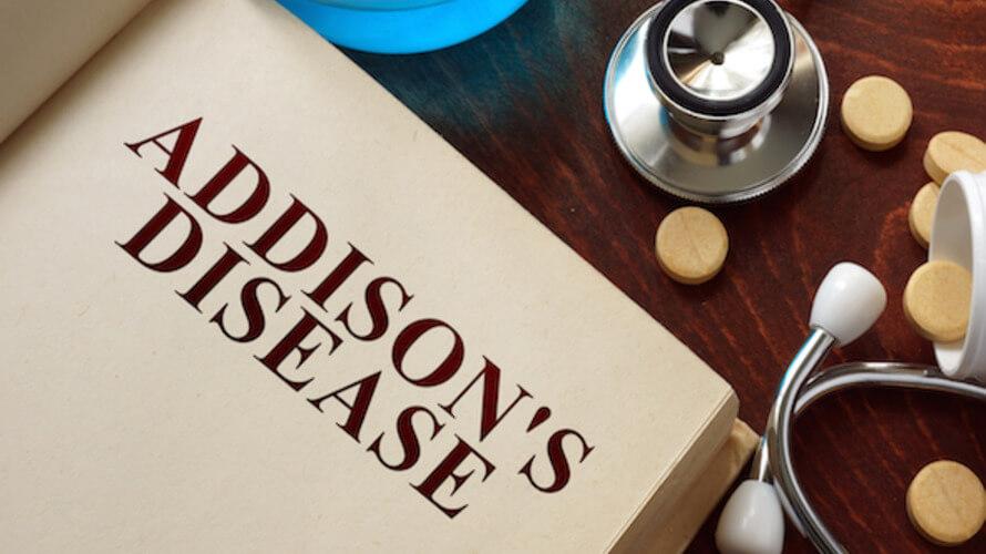 addisonova bolest
