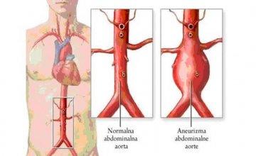 aneurizma abdominalne aorte