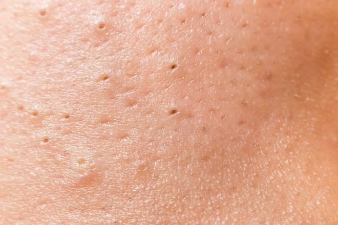 prosirene pore