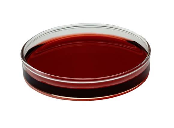 uzorak-krvi