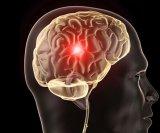 aneurizma mozga