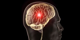 Aneurizma mozga – uzroci, simptomi, dijagnoza i liječenje