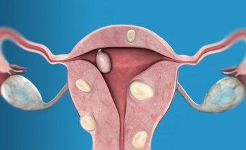fibroidi-miom-maternice