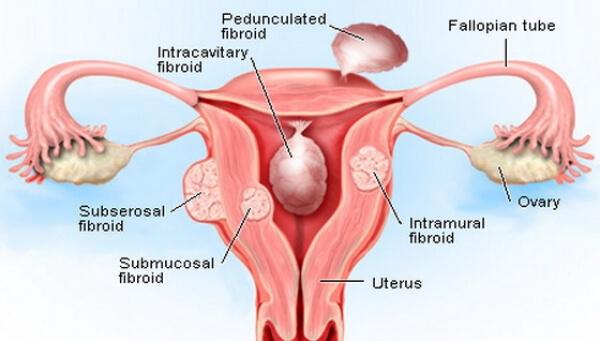 miom fibroid