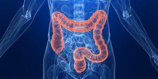 Rak anusa i rektuma – uzroci, simptomi, komplikacije i liječenje
