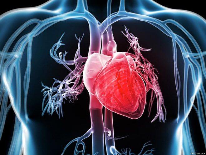 Srčane bolesti